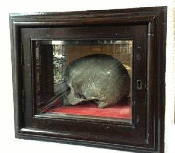 Wardley Skull